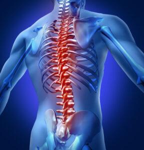 Failed Back Syndrome