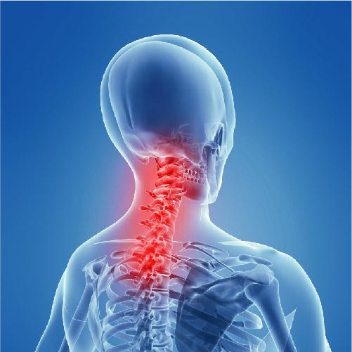 Neck Pain Source
